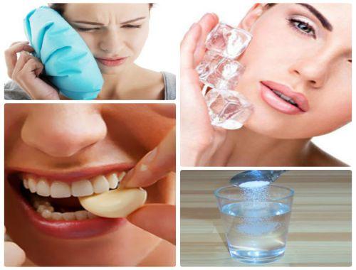 [Tìm hiểu] Mọc răng khôn bị đau phải làm sao để giảm đau nhức? 2