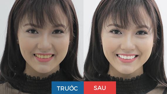 Khách hàng thay đổi ngoạn mục trước và sau khi làm trắng răng laser WhiteMax