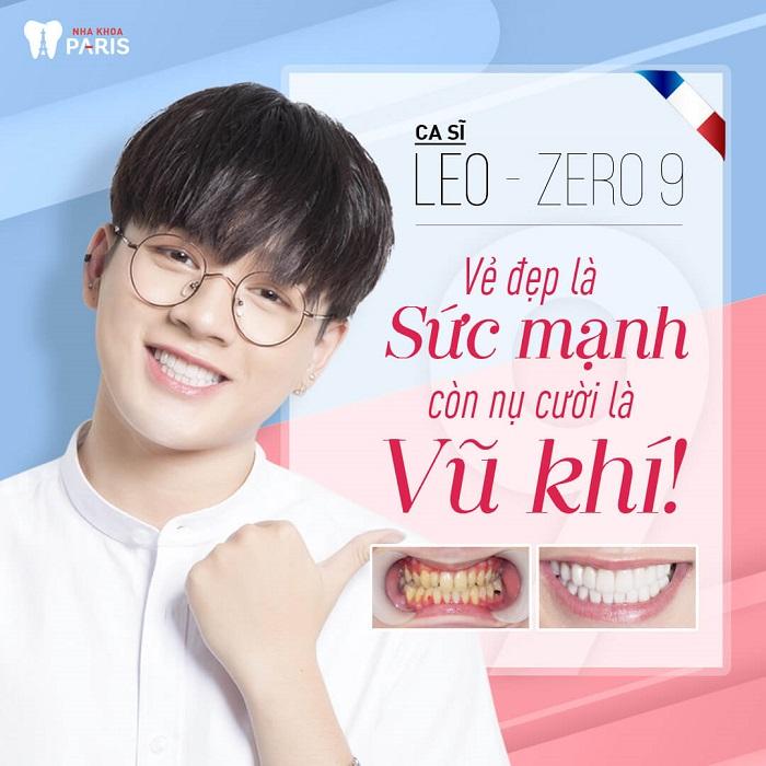 Làm răng sứ Direct Veneer giá bao nhiêu tiền? Khách hàng