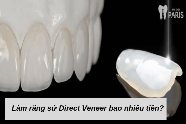 Làm răng sứ Direct Veneer giá bao nhiêu tiền?