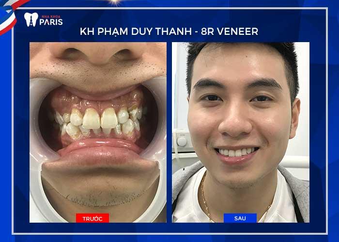 Làm răng sứ Direct Veneer giá bao nhiêu tiền? KH Phạm Duy Thanh
