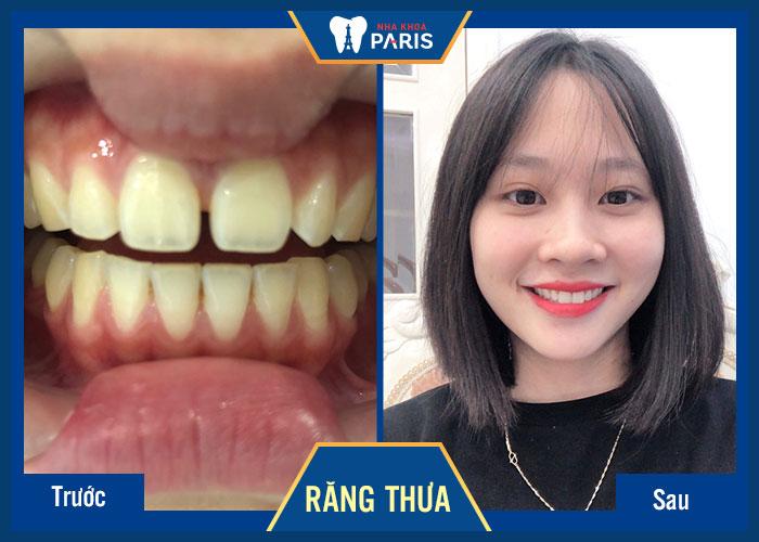Làm răng sứ Direct Veneer giá bao nhiêu tiền? Khách hàng Paris