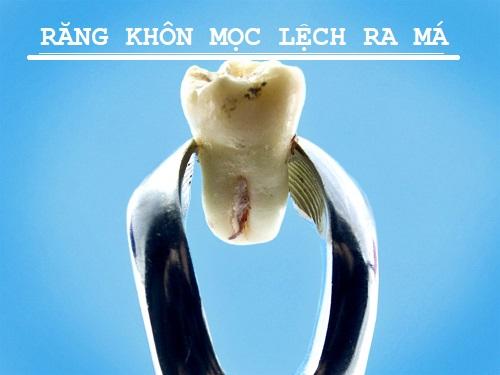 Tại sao răng khôn mọc lệch ra má