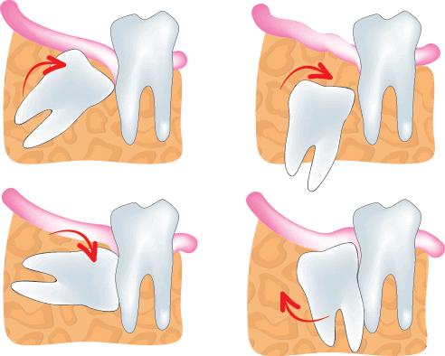 Các thế răng mọc lệch gây sưng má