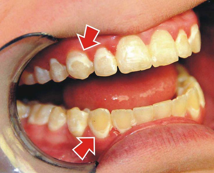 Răng không đều màu sau khi sử dụng thuốc tẩy trắng răng sai cách