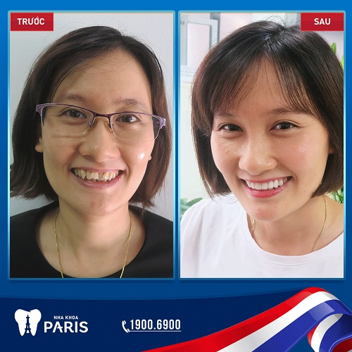 COMBO PERFECT SMILE - Giải pháp thẩm mỹ toàn diện, tiết kiệm chi phí 2