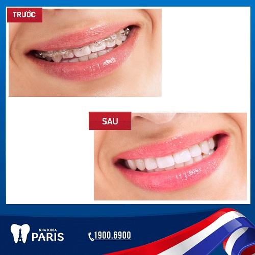 COMBO PERFECT SMILE - Giải pháp thẩm mỹ toàn diện, tiết kiệm chi phí 1