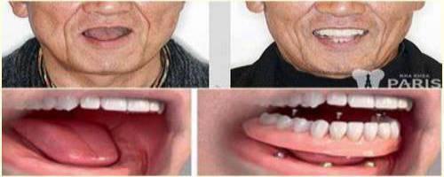 Implant all on - Phục hình răng mất toàn hàm thẩm mỹ & tiết kiệm chi phí 2