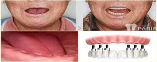 Implant all on - Phục hình răng mất toàn hàm thẩm mỹ & tiết kiệm chi phí 1
