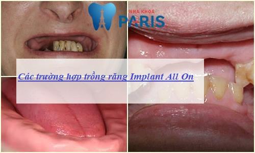 Implant all on - Phục hình răng mất toàn hàm thẩm mỹ & tiết kiệm chi phí 5