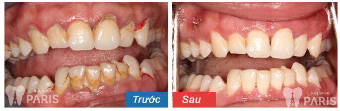 TEETH SPA - Giải pháp chăm sóc răng miệng toàn diện từ chuyên gia 11