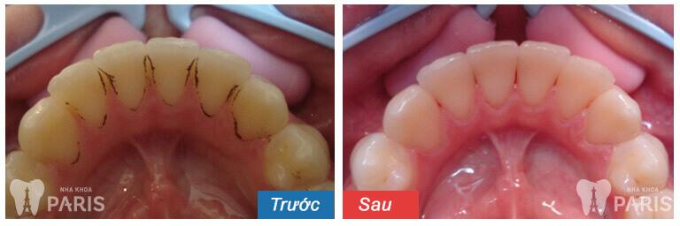 TEETH SPA - Giải pháp chăm sóc răng miệng toàn diện từ chuyên gia 9