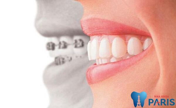 TEETH SPA - Giải pháp chăm sóc răng miệng toàn diện từ chuyên gia 5