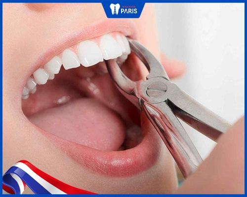 Giá nhổ răng hàm bao nhiêu tiền?