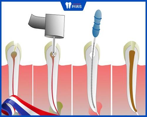 Lấy tủy răng bao nhiêu tiền trong từng trường hợp cụ thể?