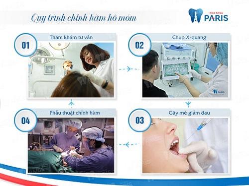 quy trình phẫu thuật hàm hô