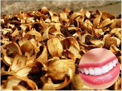 Cách Làm trắng răng bằng vỏ cau khô