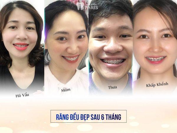 Kết quả niềng răng bác sĩ Trâm và cộng sự nhận được sự hài lòng của khách hàng.