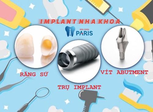 Cấy ghép Implant Nha khoa 4S - Giải pháp tái tạo răng mất hoàn hảo 2