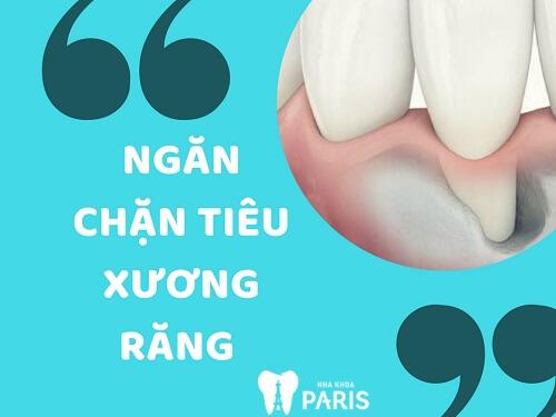 Cấy ghép Implant Nha khoa 4S - Giải pháp tái tạo răng mất hoàn hảo 6