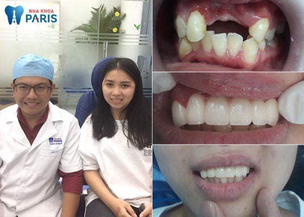 Kết quả phục hình kết hợp làm cầu răng và implant.