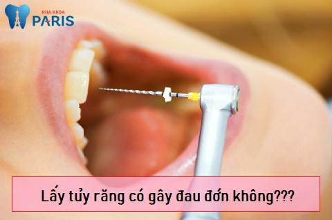 Lấy tủy răng có đau không là thắc mắc chung của nhiều người