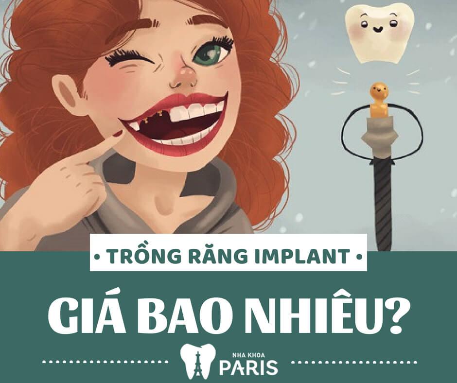 Nha Khoa Paris - Địa chỉ trồng răng Implant hàn quốc chất lượng