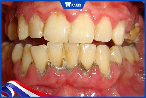 cao răng dưới nướu