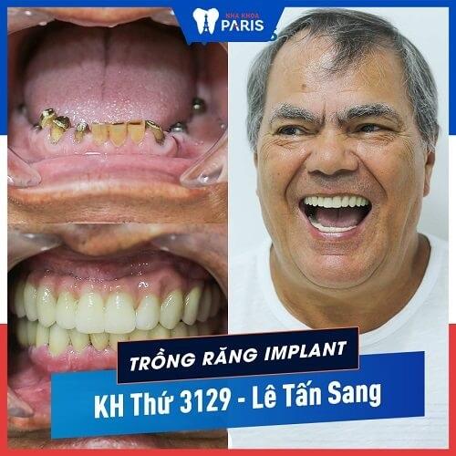 làm implant mất bao nhiêu thời gian