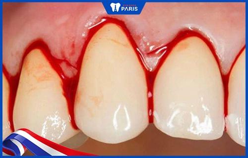 Lấy cao răng dưới lợi