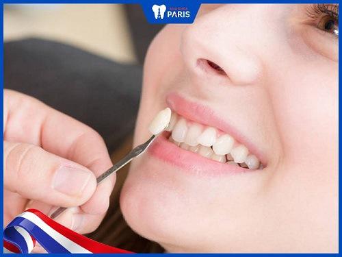 Có nên trồng răng khểnh không?