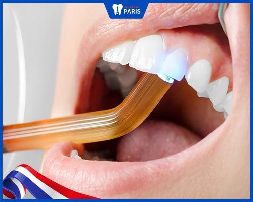 trồng răng khểnh giá bao nhiêu