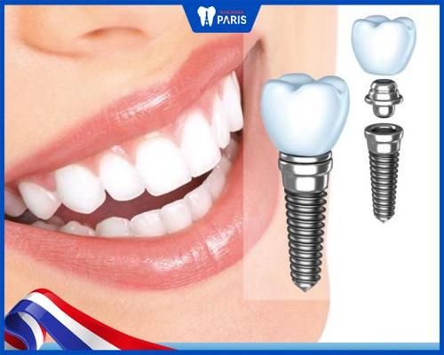 giá tiền trồng răng khểnh bằng implant