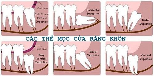 Giá nhổ răng khôn mọc lệch sẽ cao hơn giá nhổ răng khôn mọc thẳng