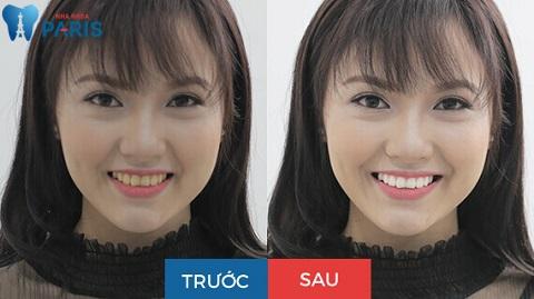 Hàm răng trắng sáng, thu hút hơn sau khi được tẩy trắng