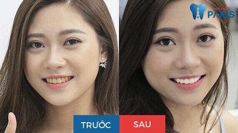 Sự khác biệt rất lớn trước - sau khi tẩy trắng răng