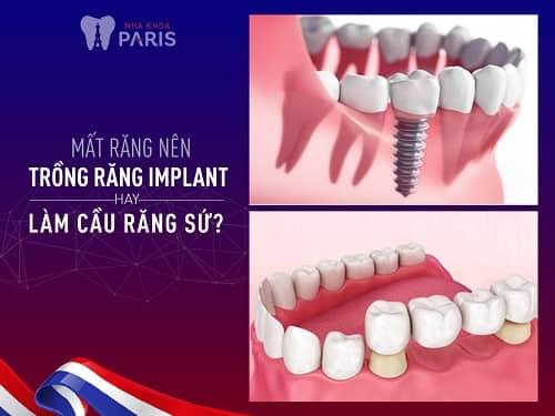 nên làm cầu răng hay implant thì tốt hơn