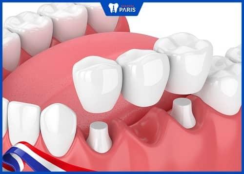 cầu răng hay implant tốt hơn