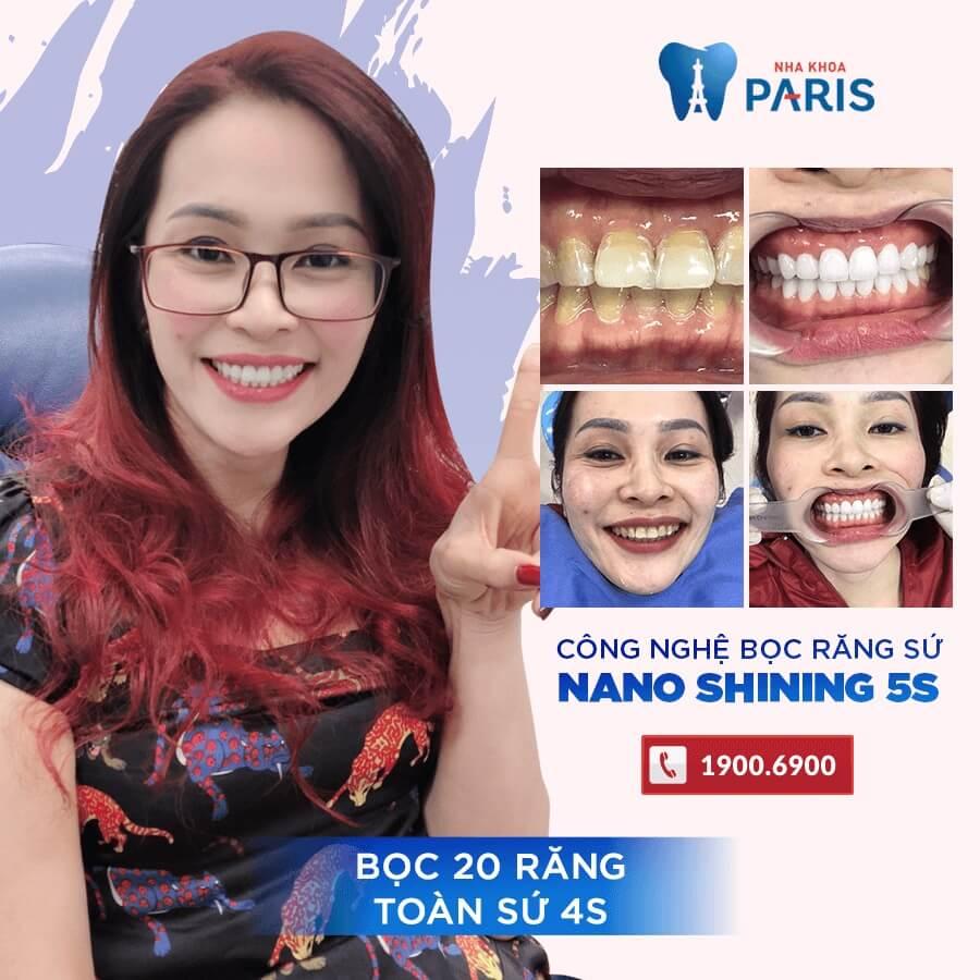Khách hàng trải nghiệm công nghệ thiết kế nụ cười DSD khi bọc răng sứ tại Paris