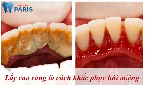 Lấy cao răng là cách điều trị hôi miệng tận gốc