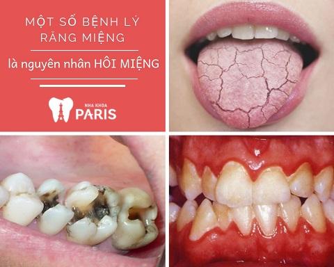 Hôi miệng là dấu hiệu của bệnh gì? Các bệnh lý răng miệng là một trong số đó