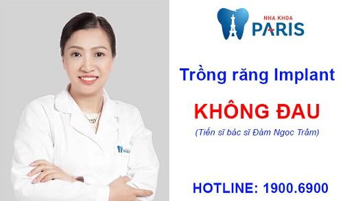 3 yếu tố quyết định đến quy trình trồng răng Implant có đau hay không