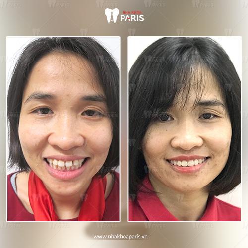 khách hàng nẹp răng với công nghệ 3D Speed