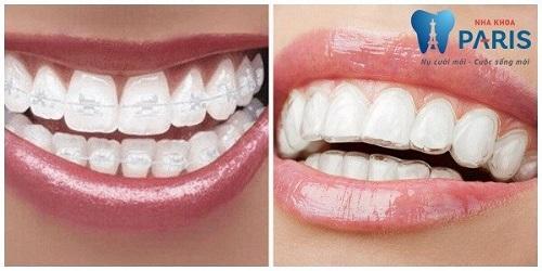 niềng răng trong suốt tại địa chỉ niềng răng uy tín