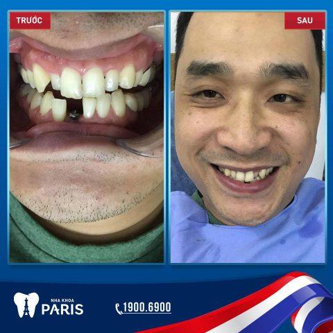 trồng răng implant tại hải phòng, trồng răng implant hải phòng