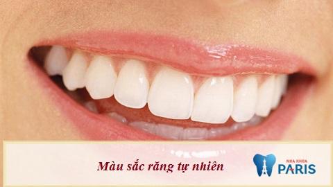 bọc răng sứ ở vinh nghệ an chất lượng tốt