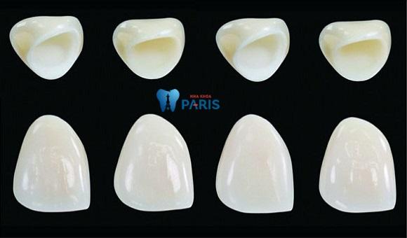 làm răng sứ ở vinh đảm bảo về chất lượng