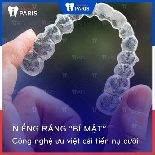 Khí cụ chỉnh nha tại Đà Nẵng có đảm bảo chất lượng?