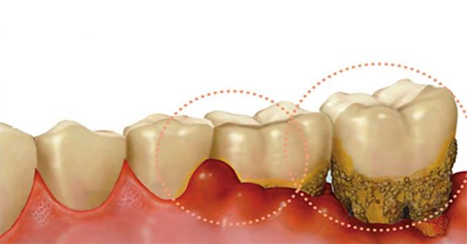 Cao răng - nguyên nhân trực tiếp gây ra các bệnh răng miệng