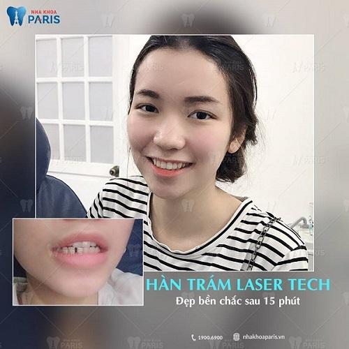 khách hàng cảm nhận giá trám răng ở paris